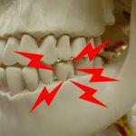 むし歯ではないのに噛むと奥歯が痛いのはなぜ?
