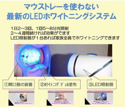 Vivid LEDホワイトニングシステム