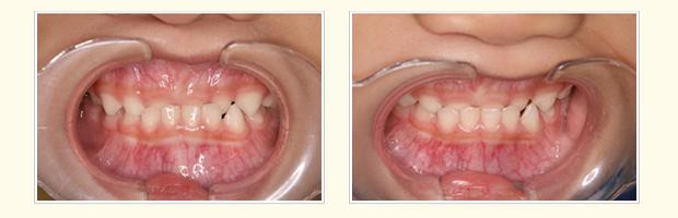 治療前 4歳4ヶ月