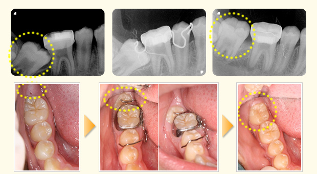 ●3Dセクショナルアーチによる右下第二臼歯の整直