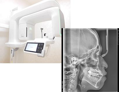 3次元歯科用 CTセファロ完備