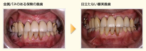 上下顎の保険義歯をウェルデンツにやり替えた症例