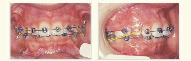 治療中(9ヶ月後) 14歳9ヶ月 上顎:3D矯正開始
