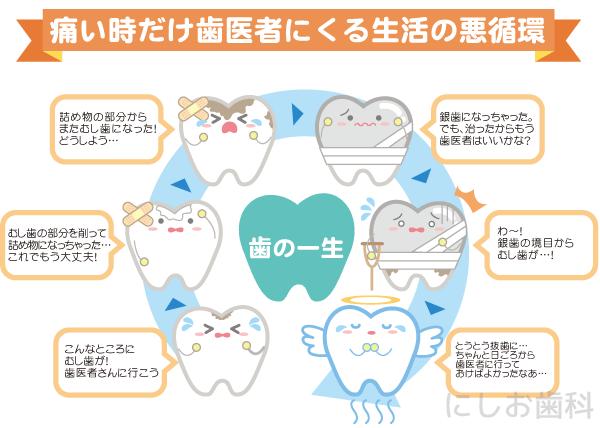 痛いときだけ歯医者に来る生活の悪循環