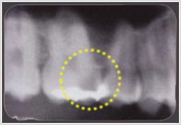 レントゲンでむし歯の範囲を確認します