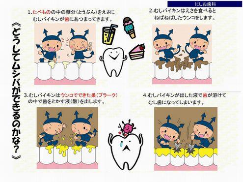 虫歯の主な原因