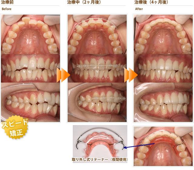 1本の出っ歯が気になる。他院では2本抜歯しての全体矯正と言われて諦めていた(20代前半女性)