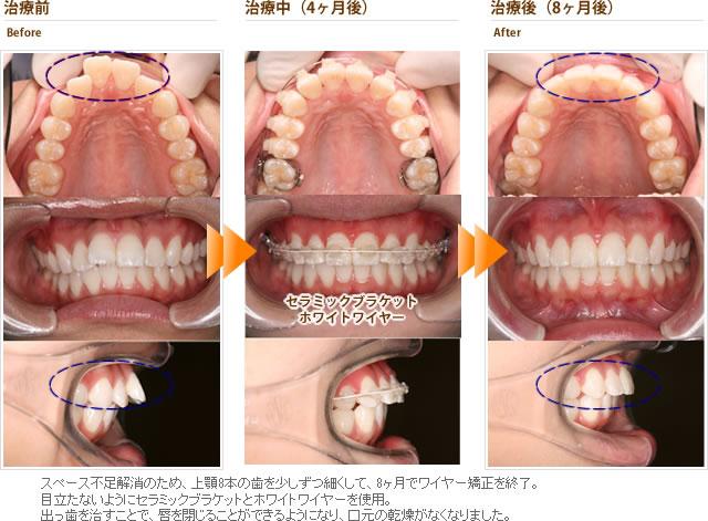症例1:出っ歯を目立たない装置で短期間で安く治して欲しい(20代女性)