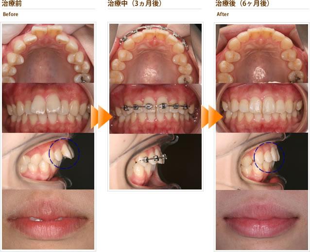 症例2:出っ歯を短期間で治してほしい(20代女性)