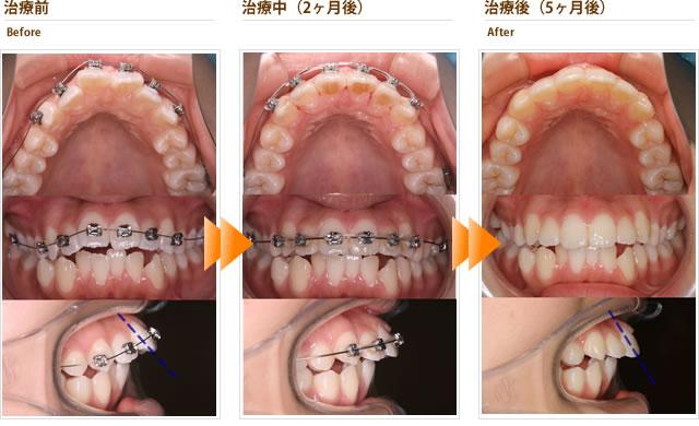 症例4:出っ歯と下の前歯のガタガタが気になる(30代後半男性)