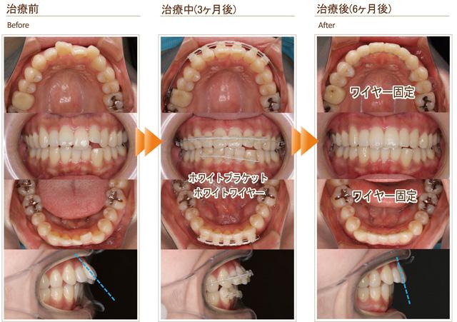 症例5:中学生の頃全体矯正したが、後戻りしてきて出っ歯になってきた(20代女性)