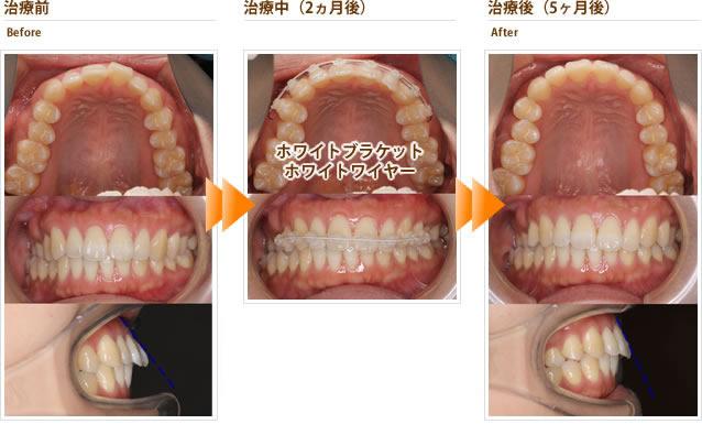 症例7:左上前歯が出っ歯で口唇から出てくる(30代後半女性)