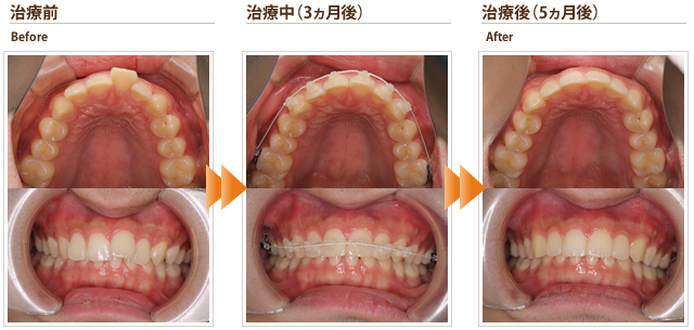 症例8:出っ歯を治したい 他院で2年くらい必要と言われた(20代後半男性)