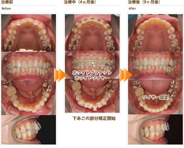 症例9:最近徐々に出っ歯になってきた(60代女性)