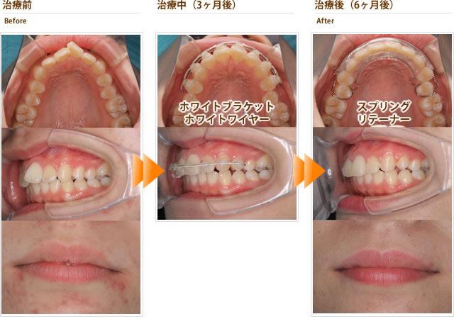 症例10:出っ歯で歯がねじれている(10代後半女性)