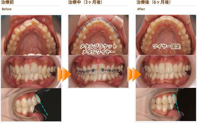 症例11:左の前歯の出っ歯が気になる(20代後半女性)