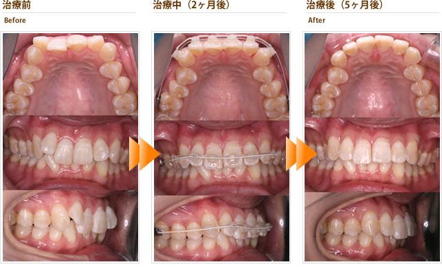 症例1:八重歯がずっと気になっている。短期間で見た目をよくしたい(30代女性)