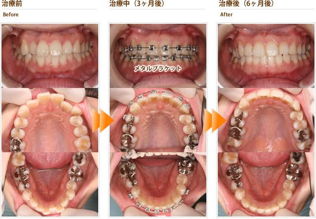症例2:上下の前歯のガタガタが気になる(20代女性)