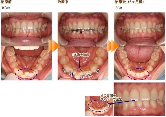 症例3:下の前歯のでこぼこを綺麗にしたい(30代女性)