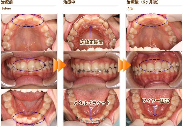 症例4:上の前歯のゆがみと下の前歯のガタガタが気になる(中学2年生女子)