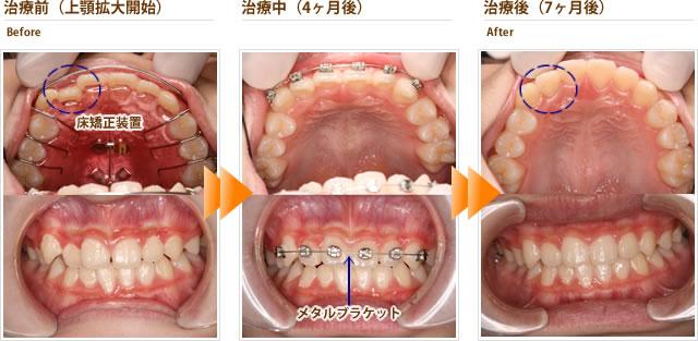 症例5:右上の八重歯が気になる。下はそのままでいい。(中学1年生男子)