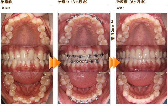 症例6:小学生の頃から上下の歯並びがガタガタでずっと気になっている(20代女性)