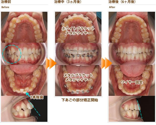 症例9:上顎の出っ歯と八重歯、下顎のガタガタを治したい(20代前半女性)