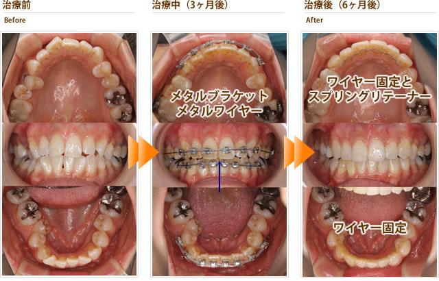 症例10:上下の前歯のガタガタをキレイにして欲しい(30代後半女性)