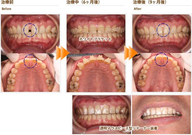 症例1:上の前歯の隙間が気になる。目立たない装置で治療したい(40代男性)