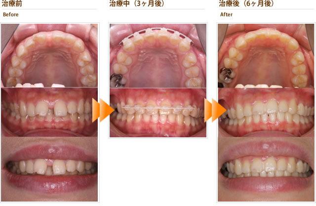 症例2:すきっ歯 だんだんと隙間が大きくなってきた気がする(20代女性)