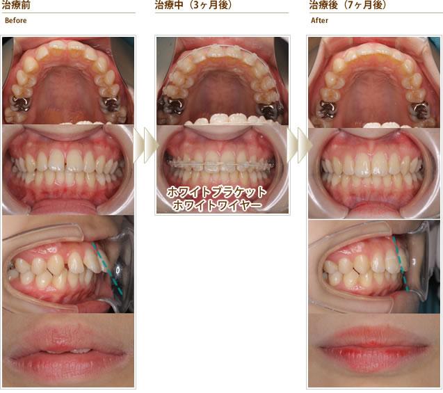 症例3:すきっ歯と出っ歯をキレイに治したい(10代後半女性)