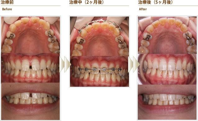 症例4:すきっ歯が気になる(20代後半女性)