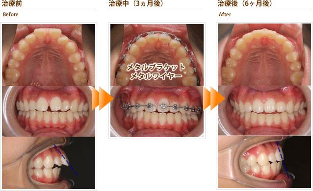症例5:すきっ歯と出っ歯が気になる(10代後半男性 6ヶ月)