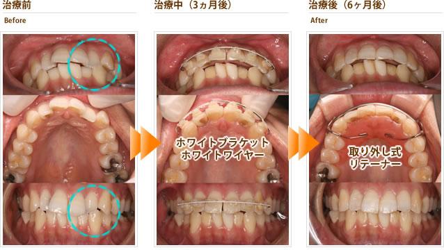 症例1:上の前歯がガタガタで左の2番目が反対咬合(20代女性)