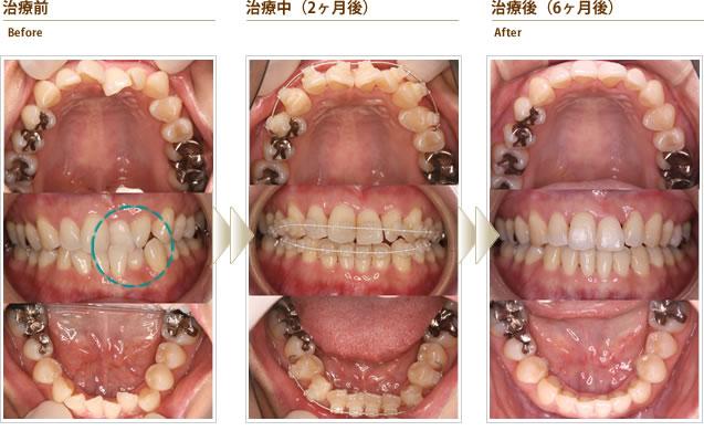 症例2:上下の前歯のガタガタ(一部反対咬合)を短期間でキレイにして欲しい(40代前半女性)