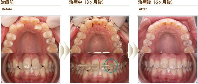 症例3:前歯がデコボコで反対咬合で出っ歯に見える(20代前半女性)