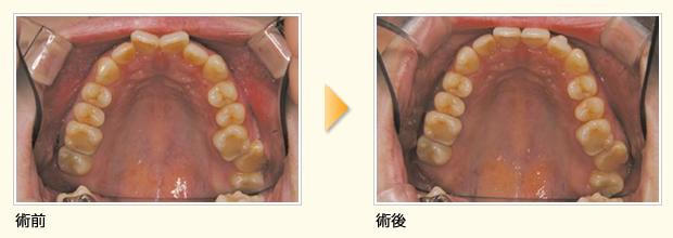 上顎前歯部のみの単純症例(治療期間約6ヶ月)