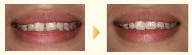 気になるすきっ歯を削ることなく、即日で歯並びがキレイになりました。