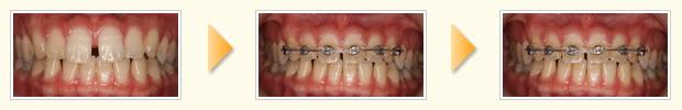 上の前歯6本ブラケットをつけて部分矯正を行い隙間を閉じました