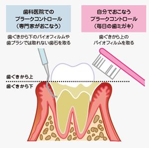 お口のなかの炎症を繰り返し進行する歯周病