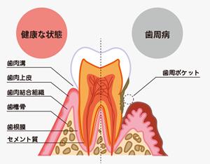 知らず知らずのうち進行する歯周病