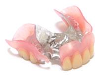 ドイツ製コバルトクロームで大きな入れ歯も薄くて軽い