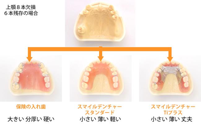保険の入れ歯と比べてみると…